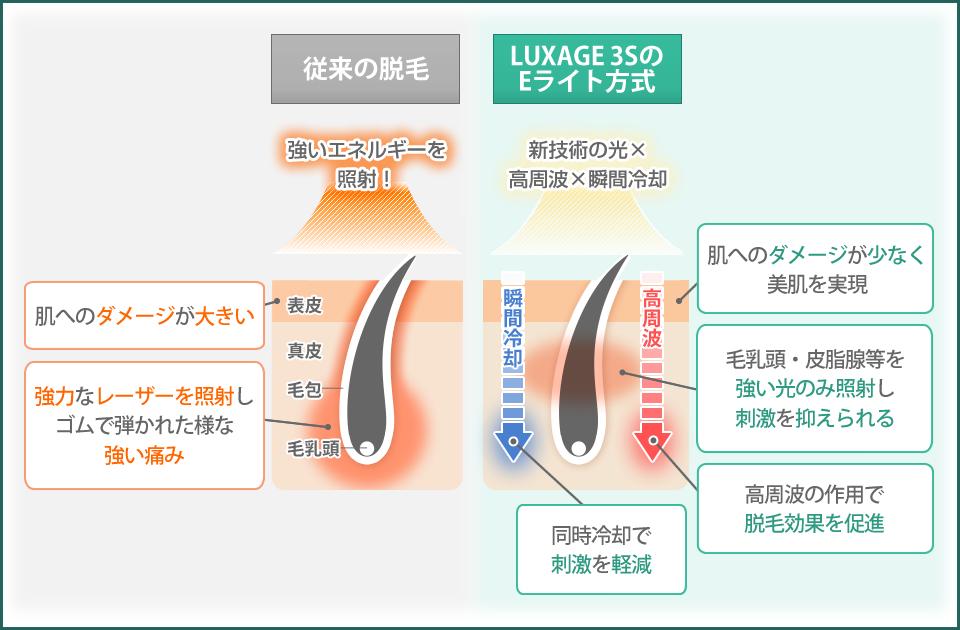 従来の脱毛とLUXAGE 3Sの比較画像